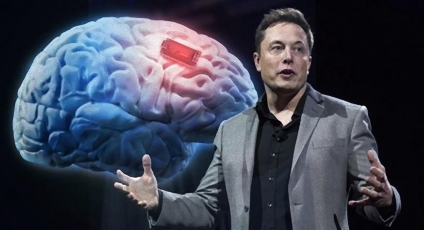 Nowa informacja na temat Neuralink, czyli co Elon Pi¿mo* chce nam wk³adaæ do mózgów
