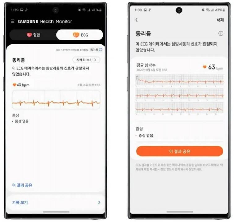 Samsung Galaxy Watch Active 2 doczeka³ siê funkcji EKG
